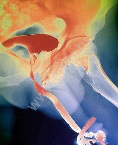 Рак простаты (рентгеновское фото Zephyr/Science Photo Library)