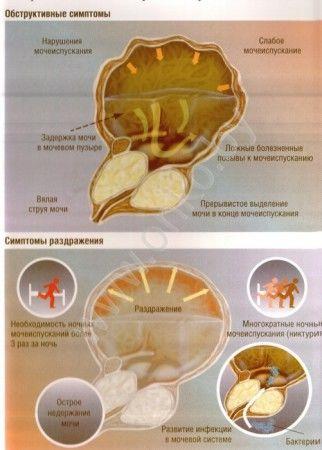 Новейший препарат лечение простатита